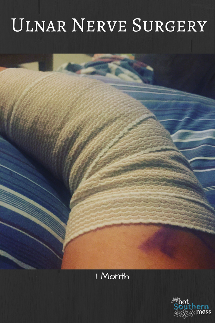 Ulnar Nerve Surgery | 1 month * My Hot Southern Mess